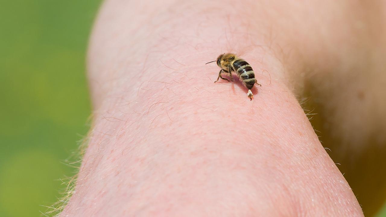 Hausmittel gegen Insektenstiche / ein Mensch wird von einer Honigbiene gestochen